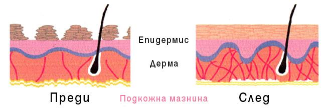 Епидермис, Дерма
